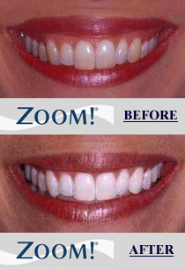 Newton Dental Associates Zoom Teeth Whitening