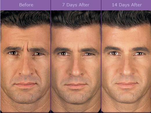 German facial structure