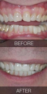 Two Veneer Replacement