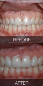 Veneer and Chip Repair