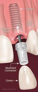 Dental Implant Boston & Newton