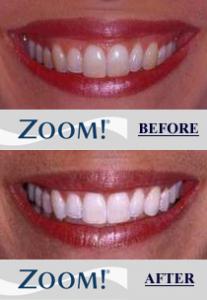 Newton Dental Associates Zoom Whitening