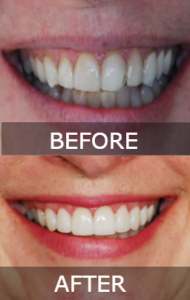 Veneer Before & After