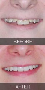 Crowding Solved with Veneers