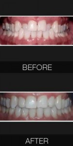 Invisialign Crossbite Correction