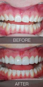Veneers Replacing Wear