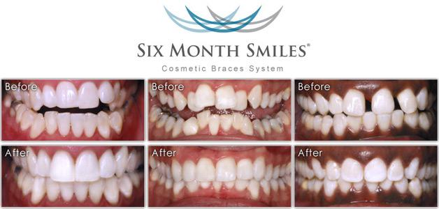 6 month smiles celebrity