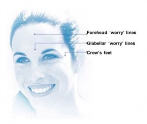 BOTOX can fix worry lines and crow's feet