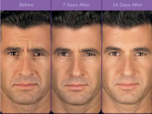 botox_beforeafterman