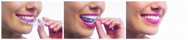 photo of the invisalign process