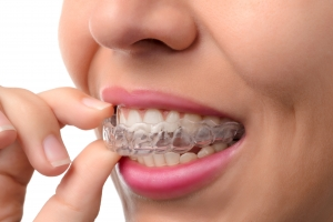 Newton Dental Assoicates Invisalign