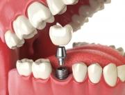 tooth human impact.