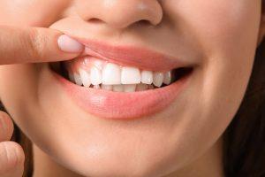 women teeth and gums